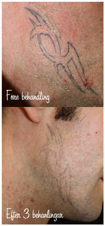 infektion tatuering behandling